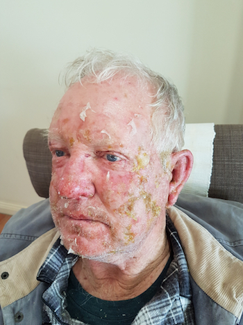 Burn injuries on Ian Hastings' face.